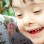 La nueva era en educación para niños con síndrome de Down